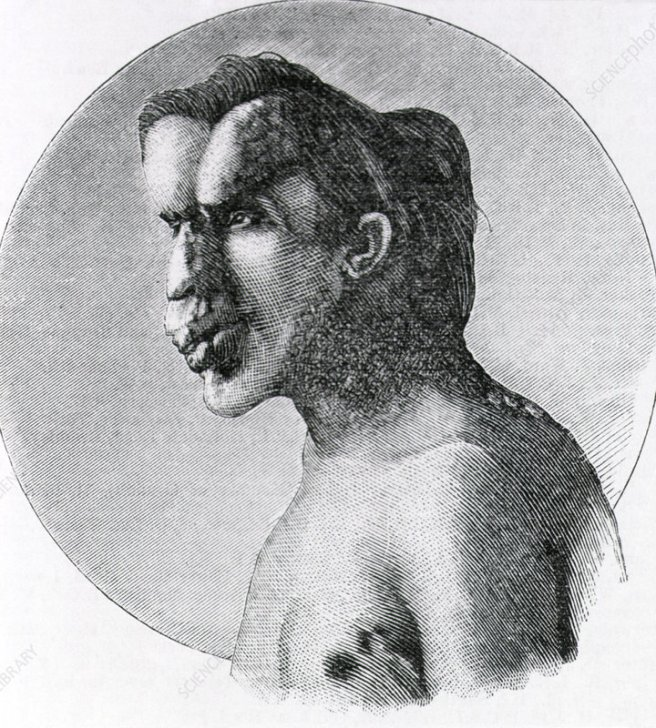 Joseph Merrick, The Elephant Man